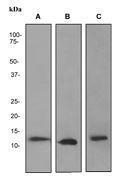 GTX62287 - S100A8 / Calgranulin-A / MRP8