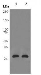 GTX62313 - Aquaporin-5