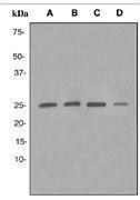 GTX62314 - Peroxiredoxin-6 / PRDX6