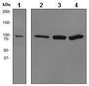 GTX62422 - Alpha-actinin-4 / ACTN4