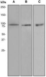 GTX62520 - TER ATPase / VCP