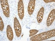 GTX62548 - Cell surface A33 antigen / GPA33