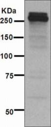 GTX62552 - Tenascin / TNC / HXB