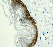 GTX62683 - Cytokeratin 14