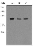 GTX62726 - Transducin beta chain 2 / GNB2
