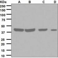 GTX62790 - Squalene synthetase