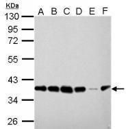 GTX628212 - Peroxin 19 / PEX19