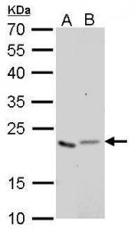 GTX628890 - Glyoxalase I / GLO1