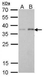 GTX628892 - Peroxin 19 / PEX19