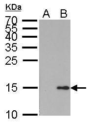 GTX628996 - Histone H2A.x