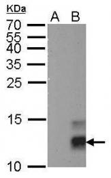 GTX629070 - Pancreatic prohormone