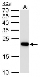 GTX629078 - Transgelin (TAGLN)