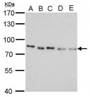 GTX629115 - Pancreatic prohormone