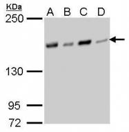 GTX629395 - NFKBIL2 / IKBR