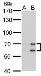 GTX629404 - Lamin-A/C (LMNA)