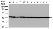 GTX629630 - Actin beta / ACTB
