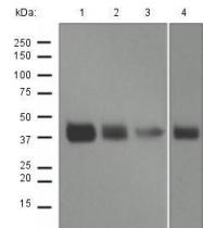 GTX63008 - Cathepsin B