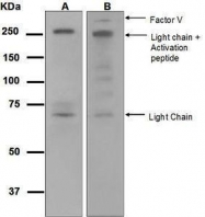 GTX63173 - Coagulation factor V (F5)