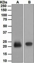 GTX63306 - Lipocalin-2