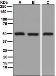 GTX63666 - Glutathione synthetase