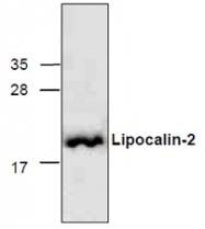 GTX65155 - Lipocalin-2