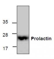 GTX65405 - Prolactin / PRL