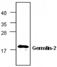 GTX65445 - Gremlin-2 / GREM2