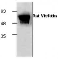 GTX65474 - Visfatin / NAMPT