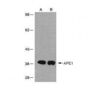GTX70130 - APEX1 / REF-1