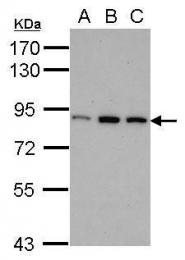 GTX70159 - PNPT1
