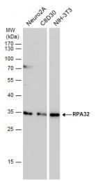 GTX70243 - RPA2