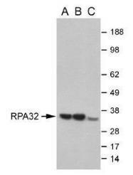 GTX70258 - RPA2