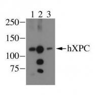 GTX70308 - XPC / XPCC