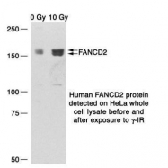 GTX70314 - FANCD2