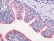 GTX70319 - Hepatitis E Virus / HEV