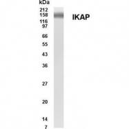 GTX70365 - ELP1 / IKBKAP