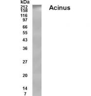GTX70369 - Acinus / ACIN1