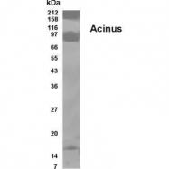GTX70370 - Acinus / ACIN1