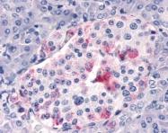 GTX70381 - Respiratory Syncytial Virus / RSV