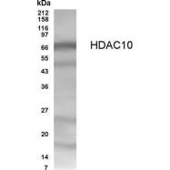 GTX70464 - HDAC10