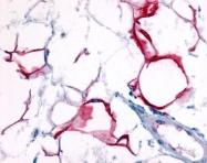 GTX70581 - Nicotinic acid receptor 2