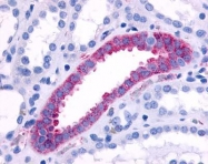 GTX70699 - Alpha-1B adrenergic receptor