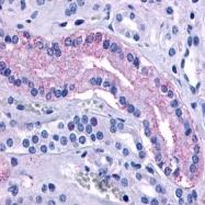 GTX70835 - Vasopressin V2 receptor (AVPR2)