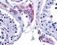 GTX70969 - Estrogen-related receptor beta