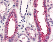 GTX71381 - Vomeronasal type-1 receptor 1 (VN1R1)