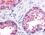 GTX71863 - Olfactory receptor 51E2