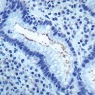 GTX73544 - Helicobacter pylori