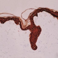 GTX73665 - Cytokeratin 1
