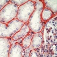 GTX73833 - Fibronectin