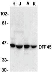 GTX74223 - DFFA / ICAD